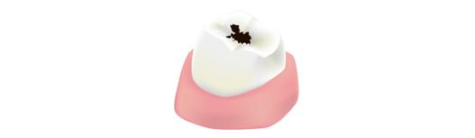 虫歯の中期